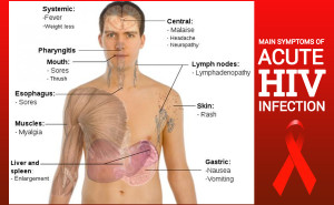 pinoy-thaiyo acute hiv symptoms