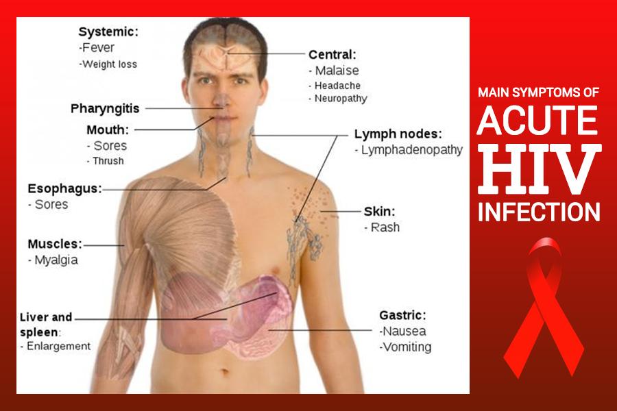 pinoy-thaiyo acute hiv symptoms
